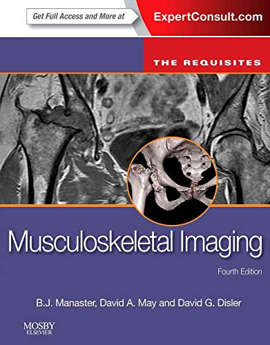 Musculoskeletal Imaging: The Requisites (Requisites in Radiology) von Elsevier LTD, Oxford