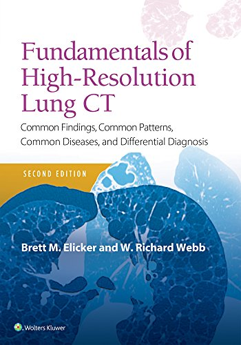 Fundamentals of High-Resolution Lung CT: Common Findings, Common Patterns, Common Diseases and Differential Diagnosis (Pocket Notebook) von Lippincott Williams and Wilkins