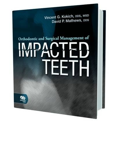 Orthodontic and Surgical Management of Impacted Teeth von Quintessence Publishing